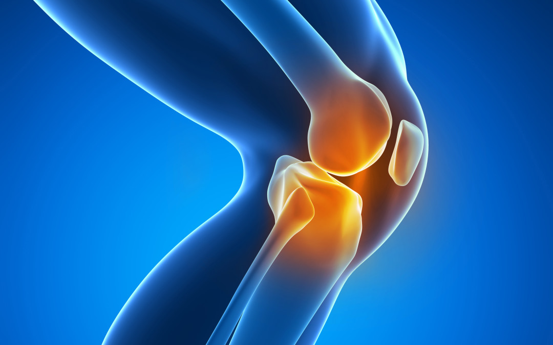 How to Decrease Knee Pain Due to Arthritis