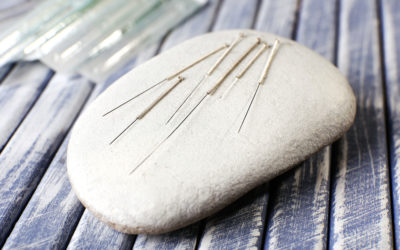 Acupuncture & Physiotherapy